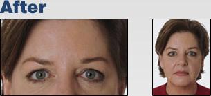 Botox Cosmetic Bluffton