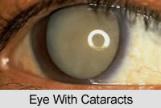 Cataract Beaufort