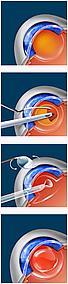 Cataract Surgery Beaufort